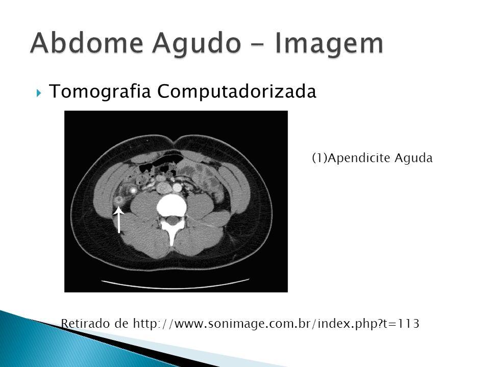 Abdome Agudo - Imagem Tomografia Computadorizada (1)Apendicite Aguda