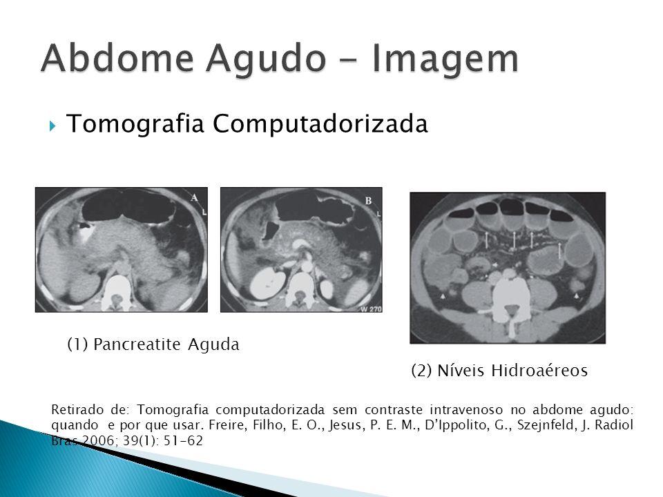 Abdome Agudo - Imagem Tomografia Computadorizada (1) Pancreatite Aguda