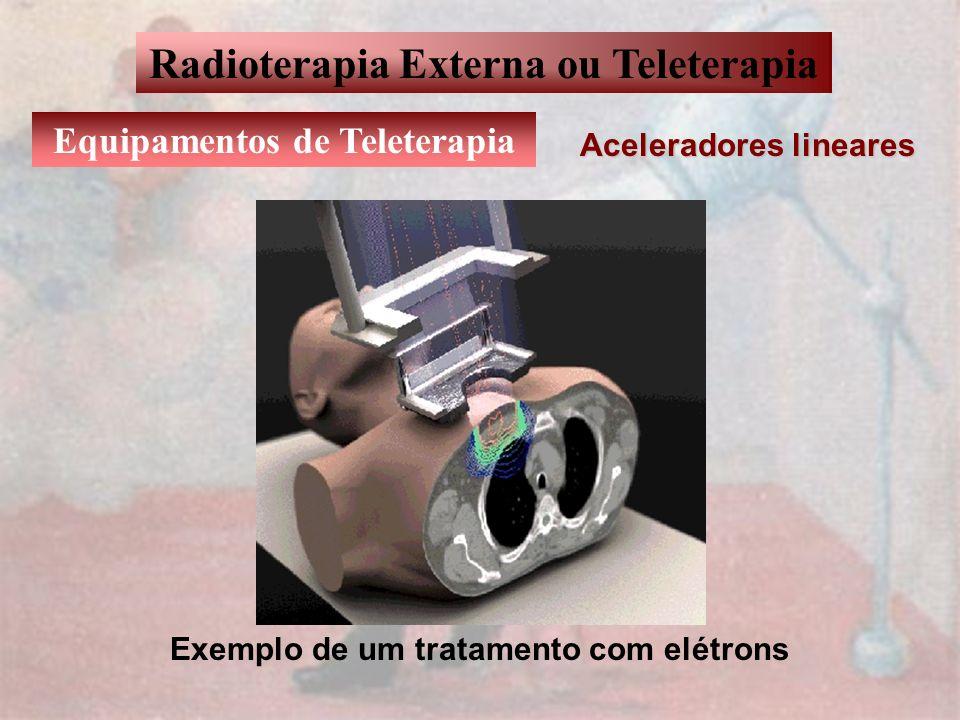 Radioterapia Externa ou Teleterapia