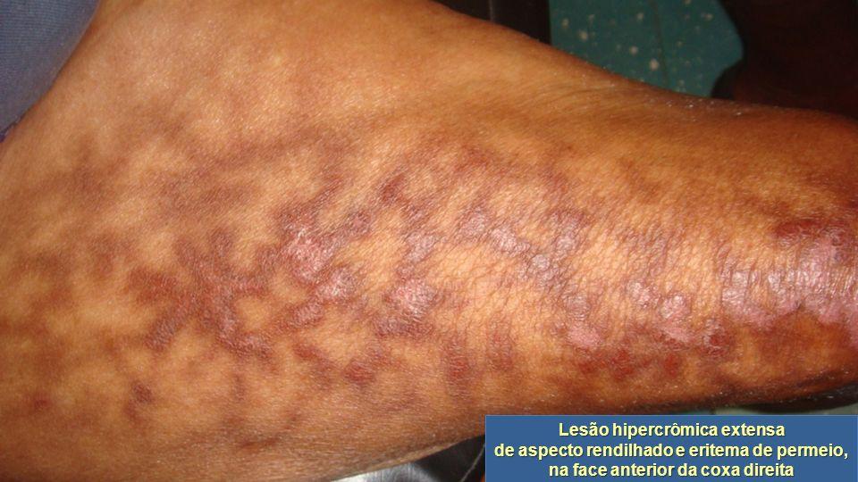 Lesão hipercrômica extensa