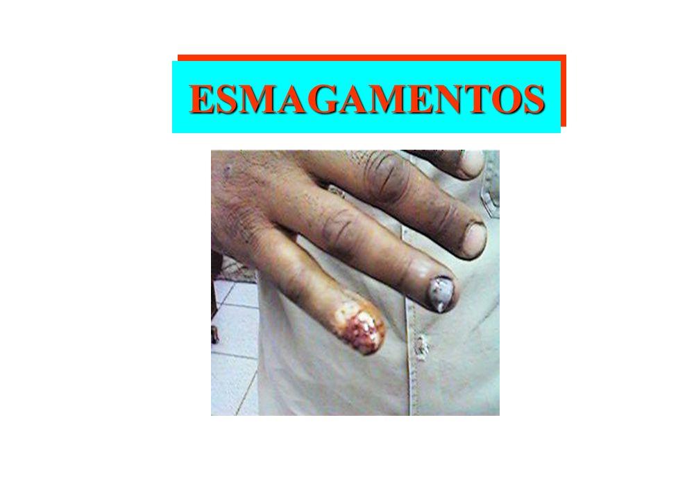 ESMAGAMENTOS