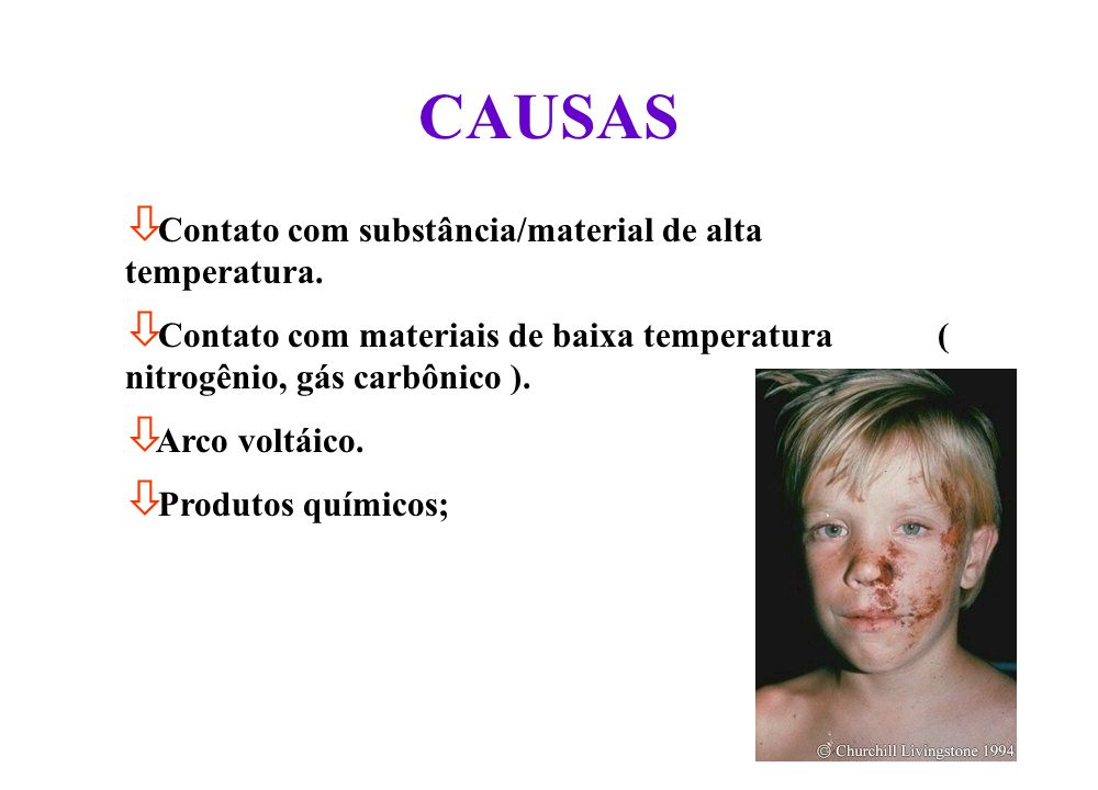 CAUSAS Contato com substância/material de alta temperatura.