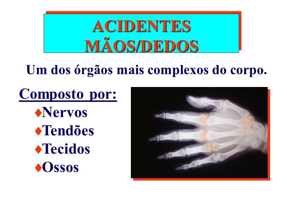 ACIDENTES MÃOS/DEDOS Composto por: Nervos Tendões Tecidos Ossos