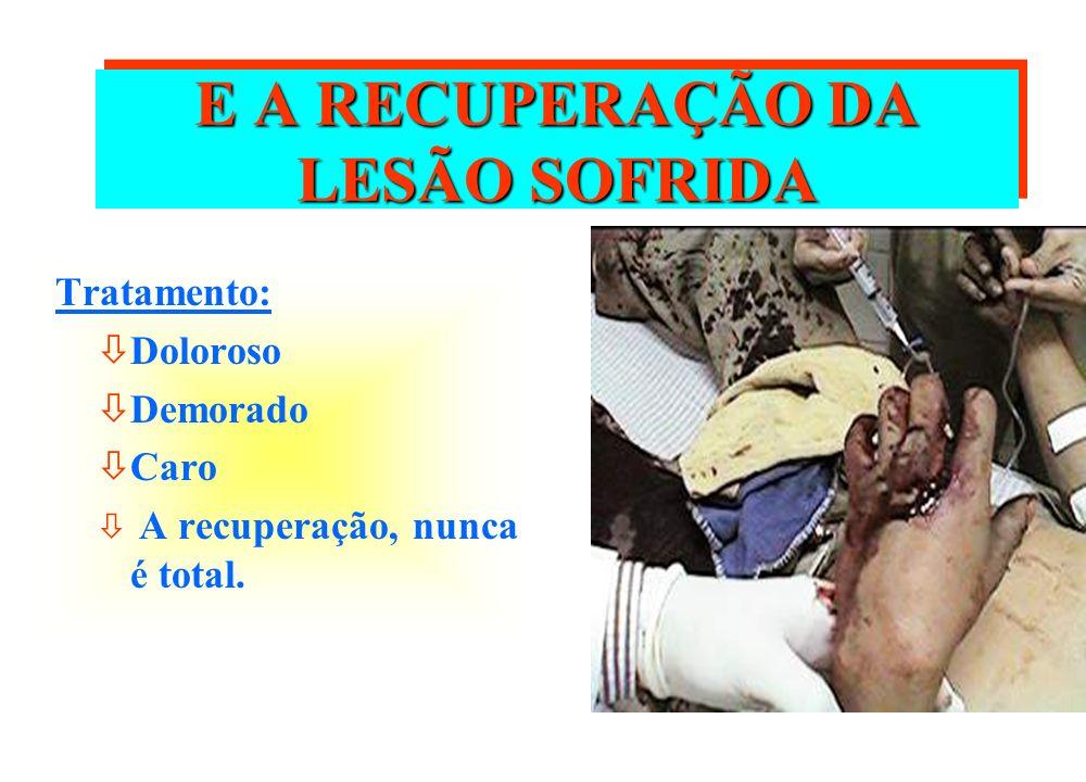 E A RECUPERAÇÃO DA LESÃO SOFRIDA