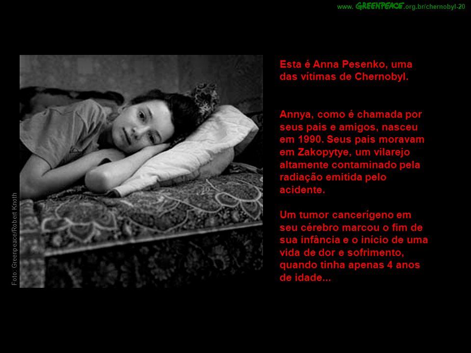 Esta é Anna Pesenko, uma das vítimas de Chernobyl.