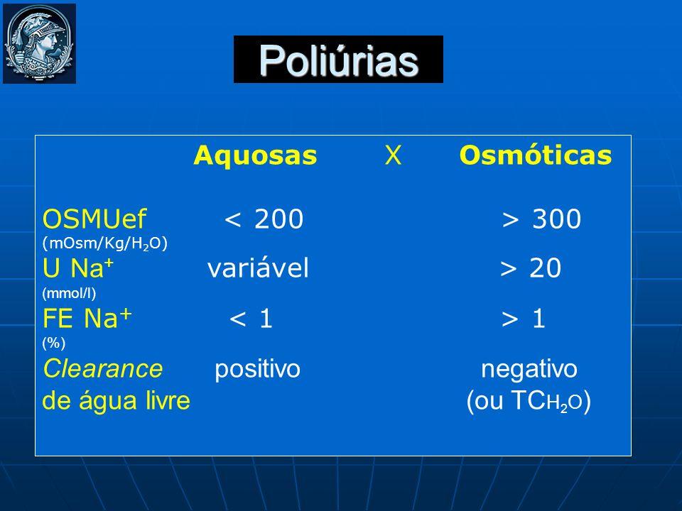 Poliúrias Aquosas X Osmóticas OSMUef < 200 > 300