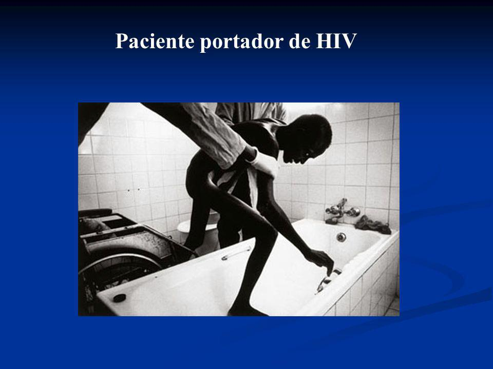 Paciente portador de HIV