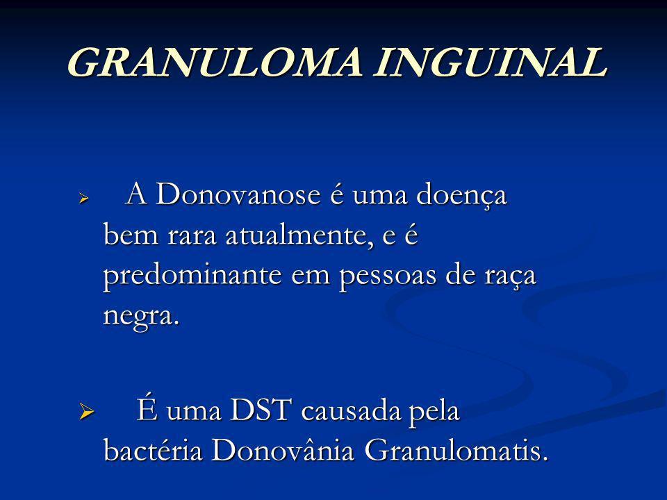 GRANULOMA INGUINAL A Donovanose é uma doença bem rara atualmente, e é predominante em pessoas de raça negra.