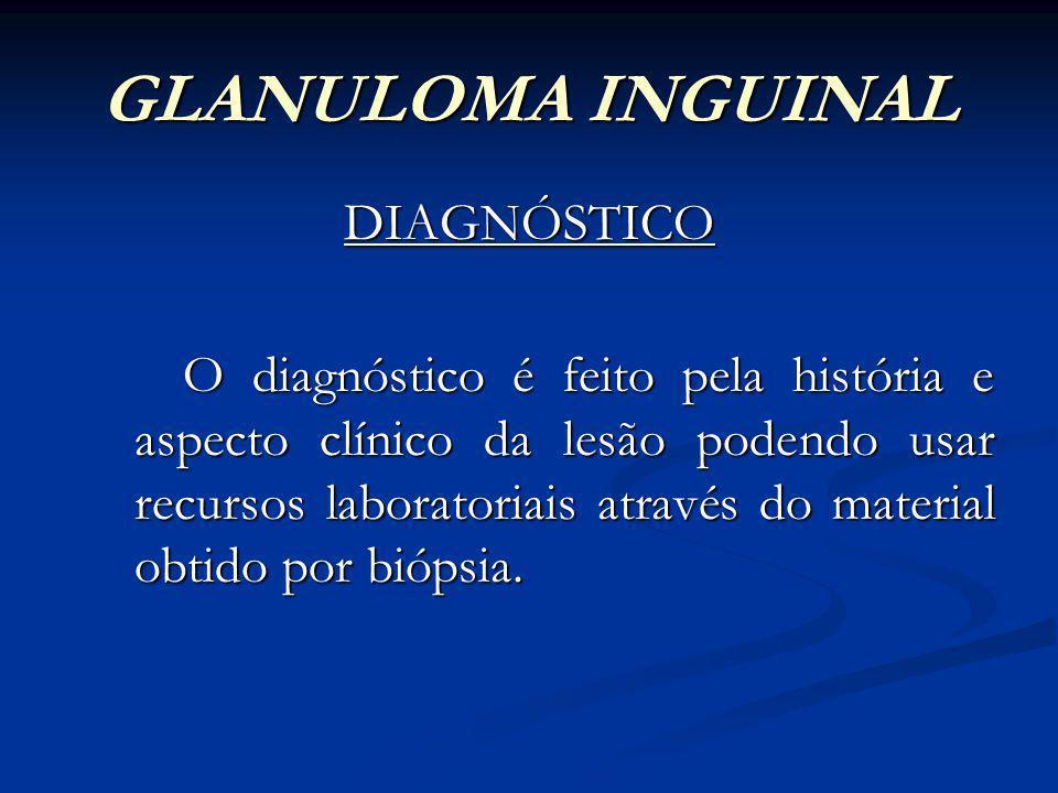 GLANULOMA INGUINAL DIAGNÓSTICO