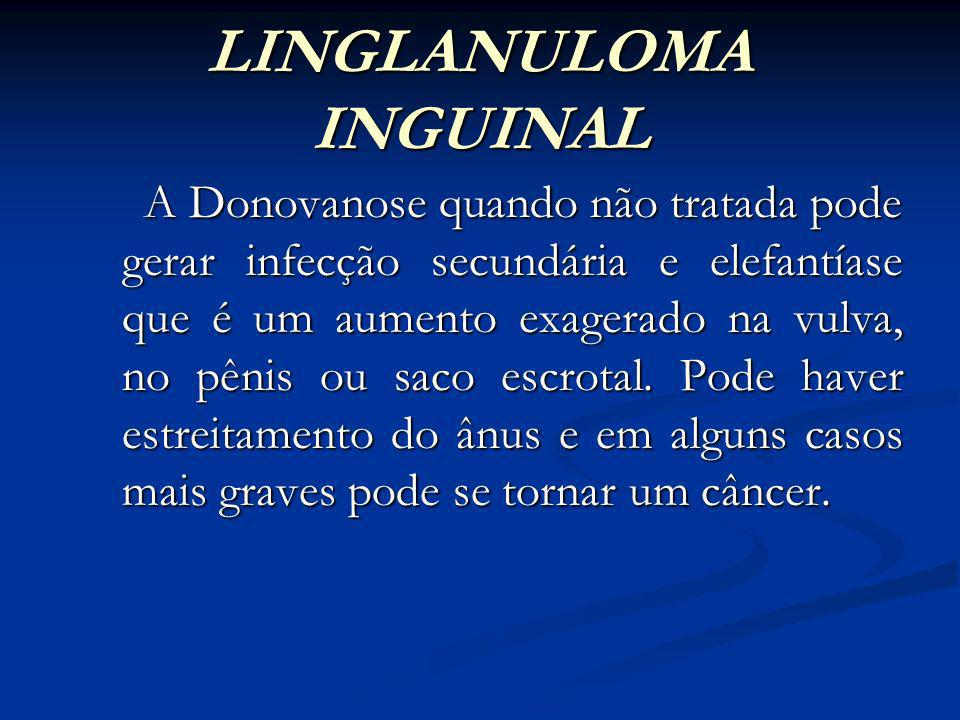 LINGLANULOMA INGUINAL