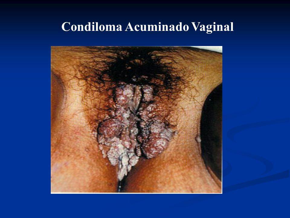 Condiloma Acuminado Vaginal