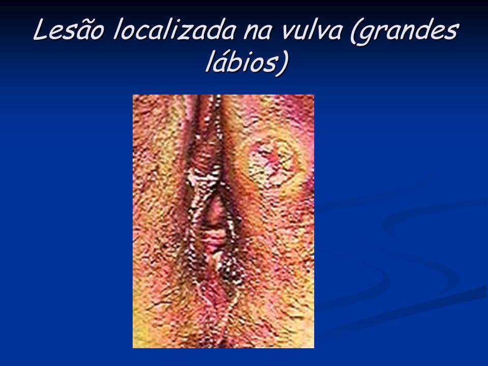 Lesão localizada na vulva (grandes lábios)