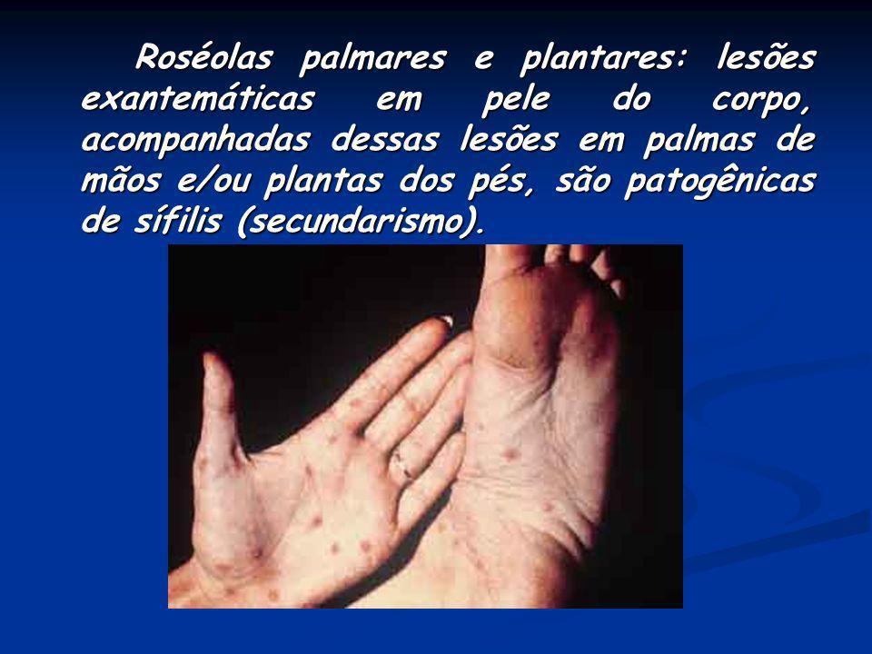 Roséolas palmares e plantares: lesões exantemáticas em pele do corpo, acompanhadas dessas lesões em palmas de mãos e/ou plantas dos pés, são patogênicas de sífilis (secundarismo).