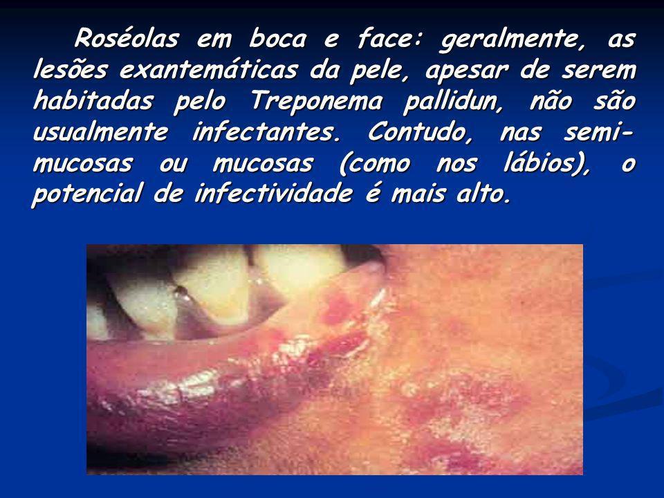 Roséolas em boca e face: geralmente, as lesões exantemáticas da pele, apesar de serem habitadas pelo Treponema pallidun, não são usualmente infectantes.