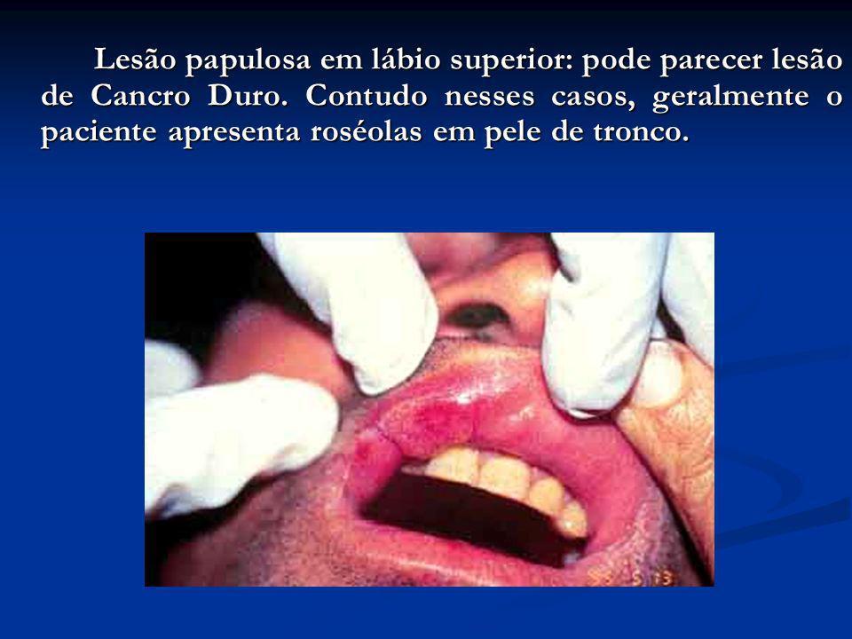 Lesão papulosa em lábio superior: pode parecer lesão de Cancro Duro