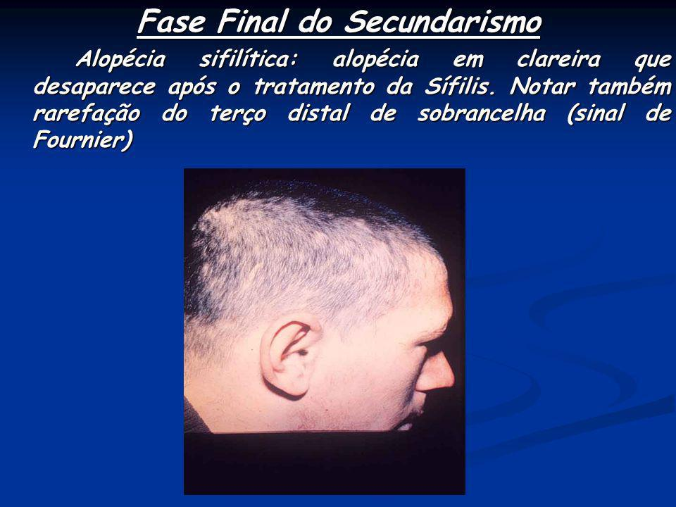 Fase Final do Secundarismo