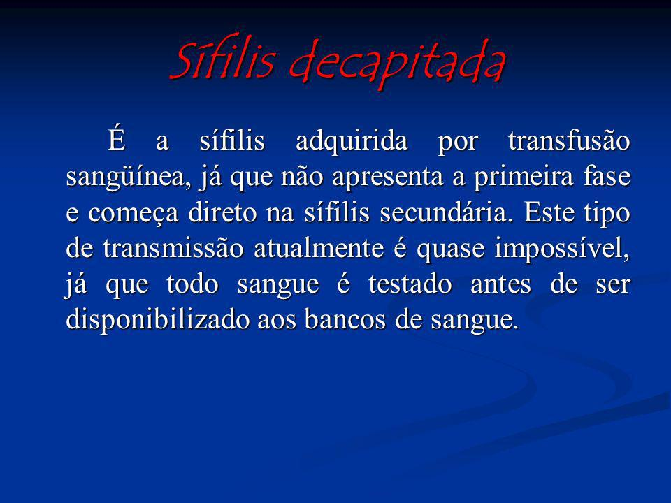Sífilis decapitada