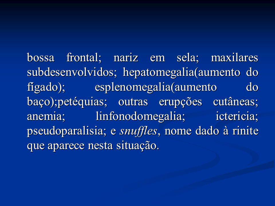 bossa frontal; nariz em sela; maxilares subdesenvolvidos; hepatomegalia(aumento do fígado); esplenomegalia(aumento do baço);petéquias; outras erupções cutâneas; anemia; linfonodomegalia; ictericia; pseudoparalisia; e snuffles, nome dado à rinite que aparece nesta situação.