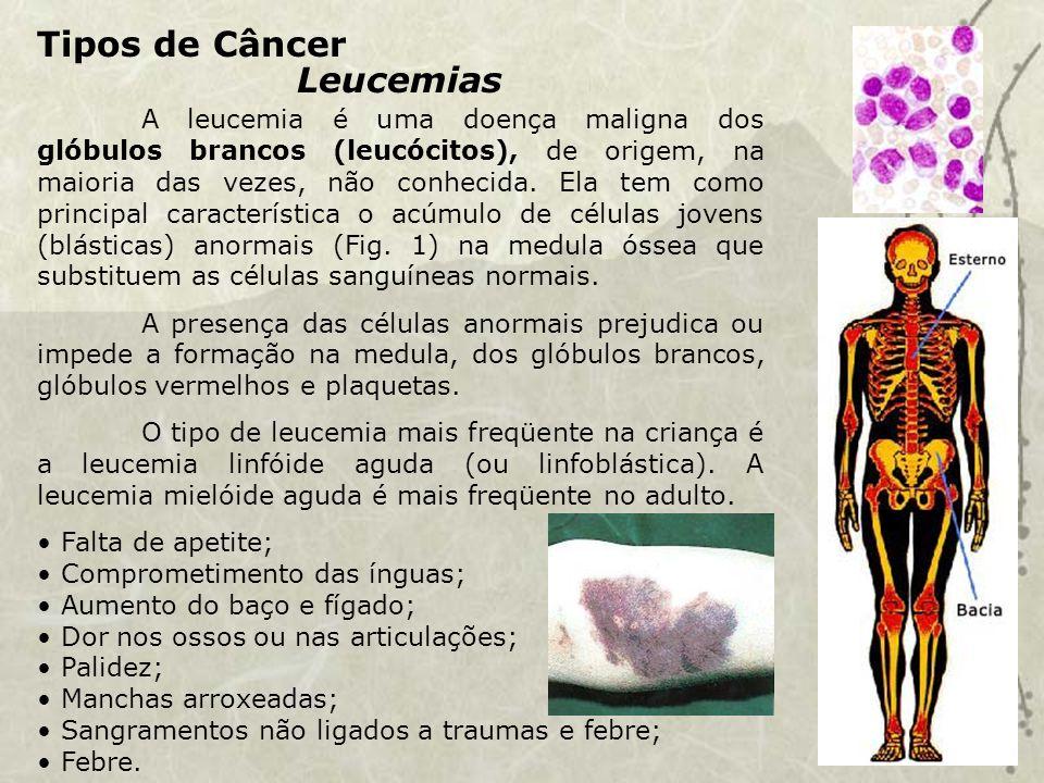 Tipos de Câncer