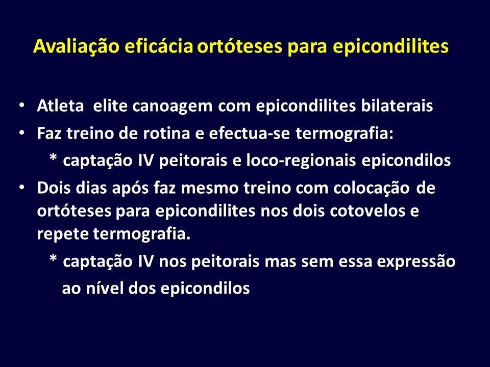 Avaliação eficácia ortóteses para epicondilites