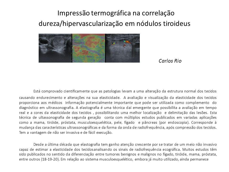 Impressão termográfica na correlação dureza/hipervascularização em nódulos tiroideus Carlos Rio