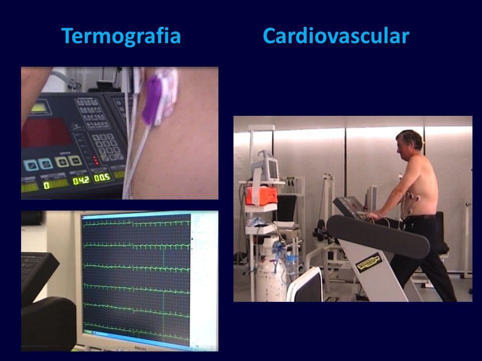 Termografia Cardiovascular
