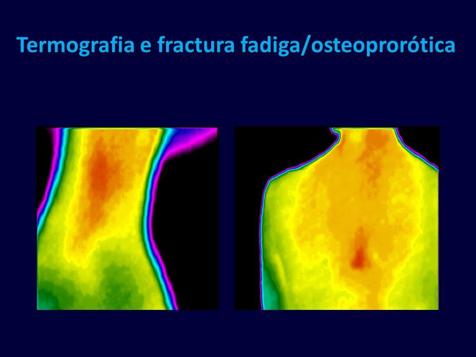 Termografia e fractura fadiga/osteoprorótica