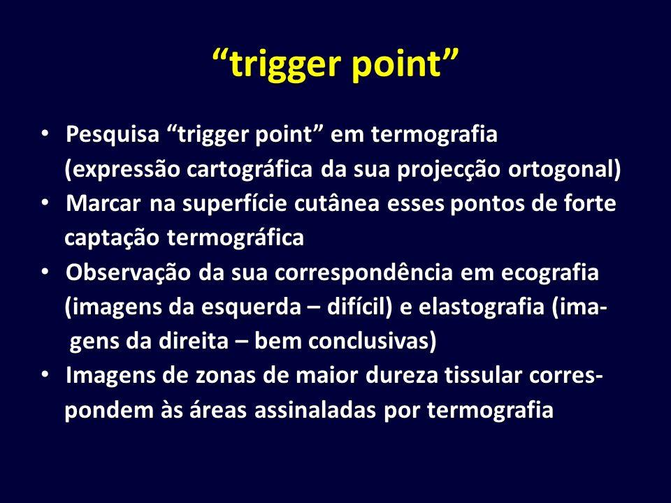 trigger point Pesquisa trigger point em termografia