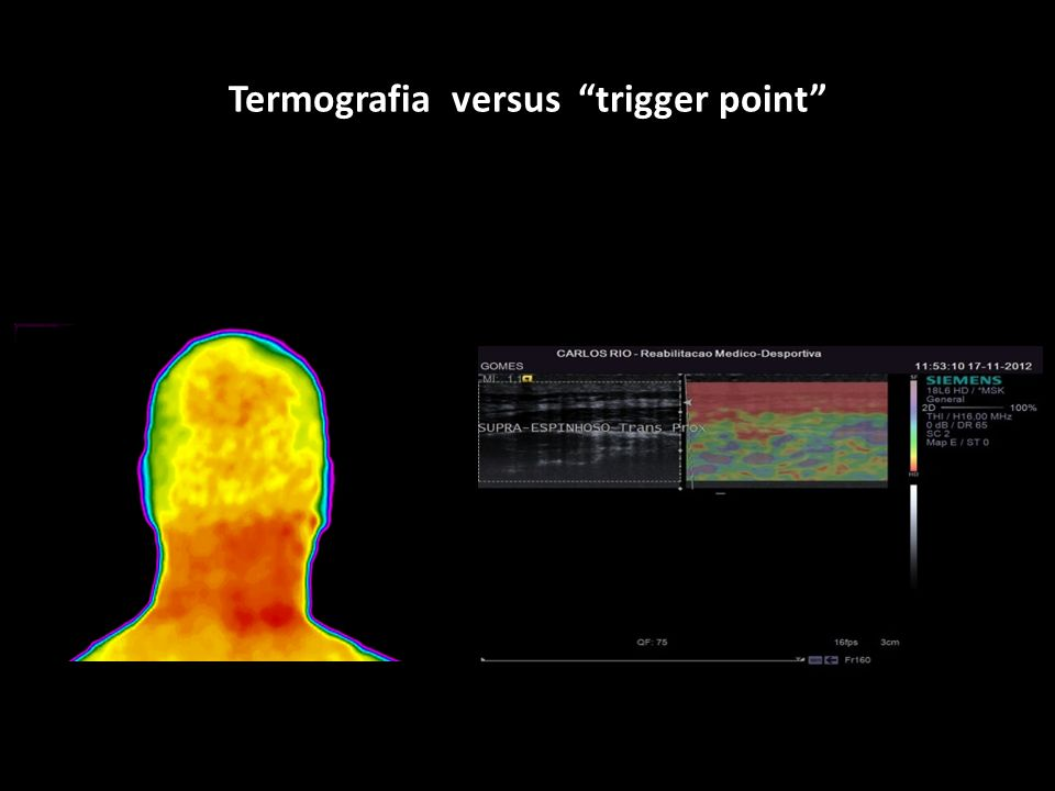 Termografia versus trigger point