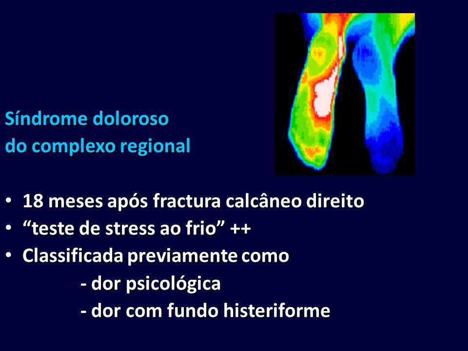 Síndrome doloroso do complexo regional. 18 meses após fractura calcâneo direito. teste de stress ao frio ++