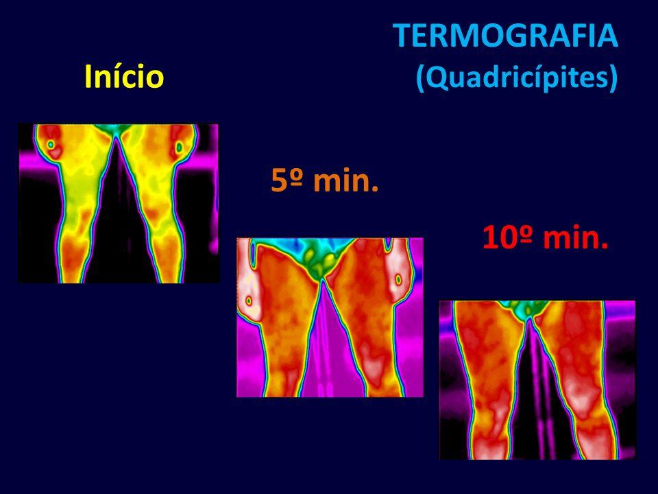 TERMOGRAFIA (Quadricípites)