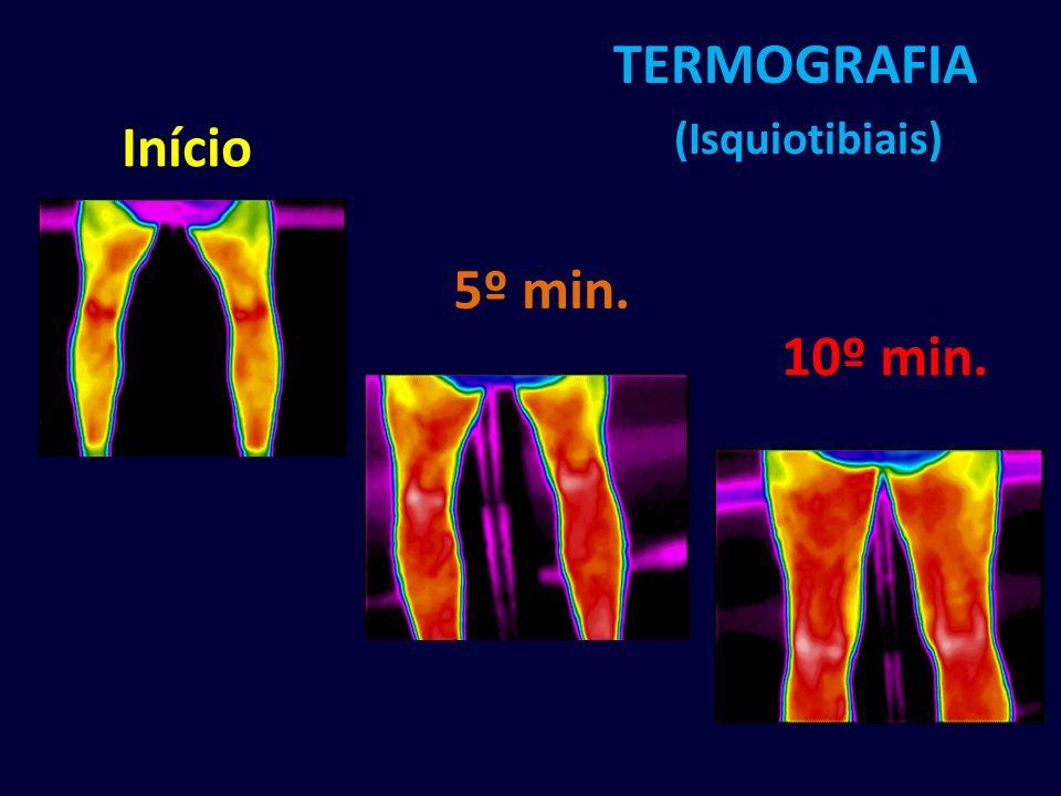 TERMOGRAFIA (Isquiotibiais)