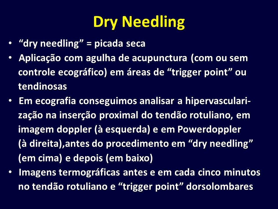 Dry Needling dry needling = picada seca