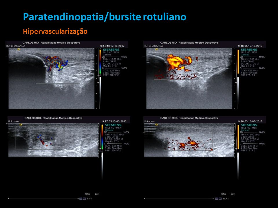 Paratendinopatia/bursite rotuliano Hipervascularização