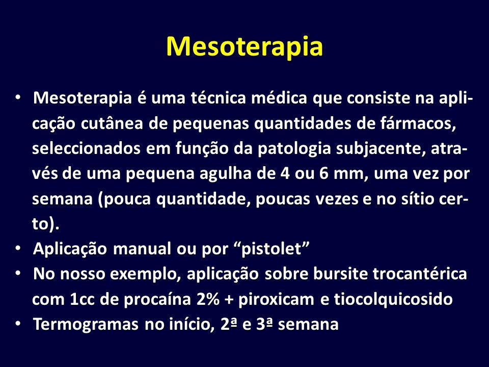 Mesoterapia Mesoterapia é uma técnica médica que consiste na apli-
