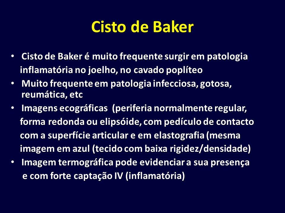 Cisto de Baker Cisto de Baker é muito frequente surgir em patologia