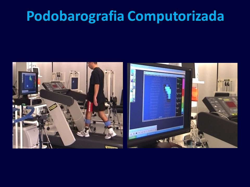 Podobarografia Computorizada