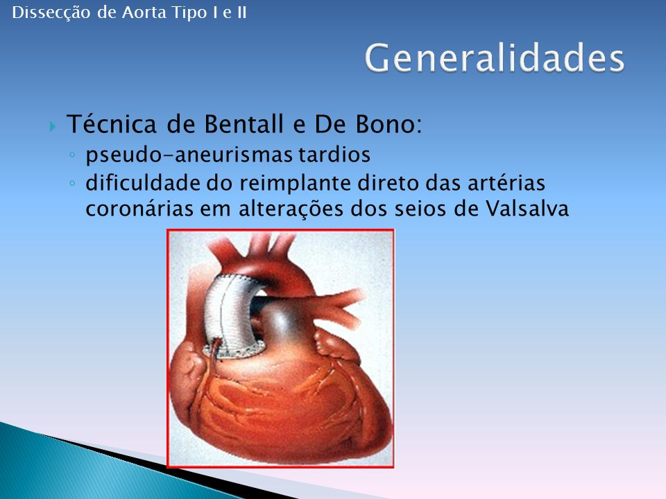 Generalidades Técnica de Bentall e De Bono: pseudo-aneurismas tardios