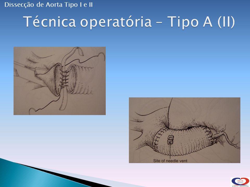 Técnica operatória – Tipo A (II)