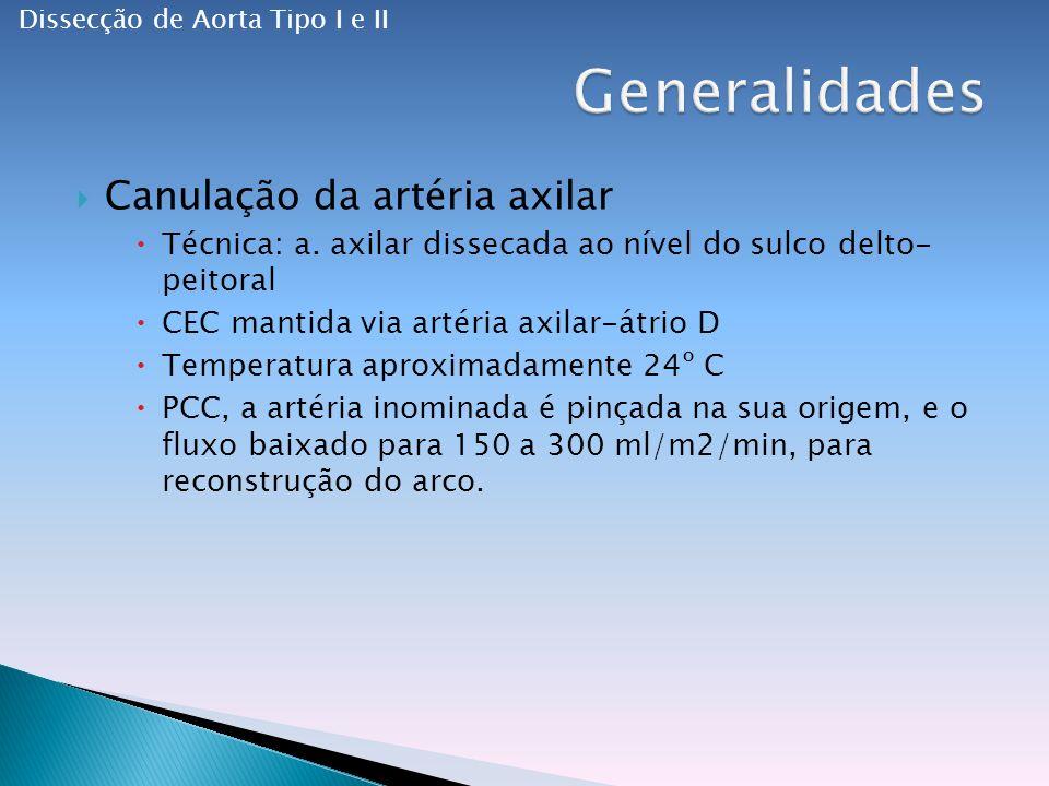 Generalidades Canulação da artéria axilar