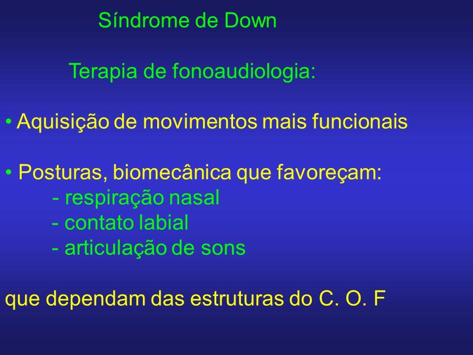Síndrome de Down Terapia de fonoaudiologia: Aquisição de movimentos mais funcionais. Posturas, biomecânica que favoreçam:
