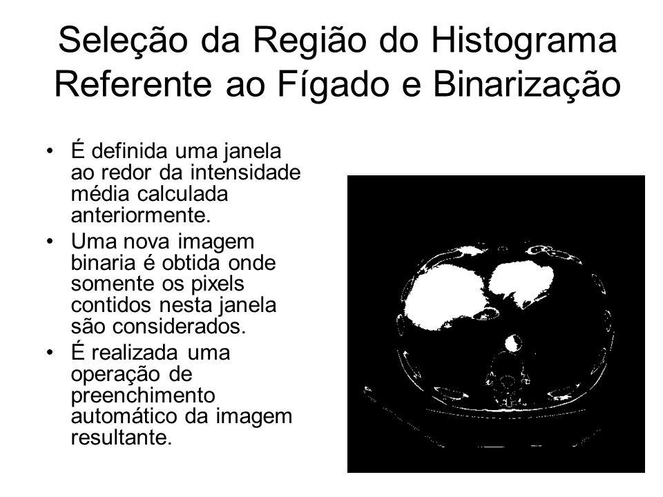 Seleção da Região do Histograma Referente ao Fígado e Binarização
