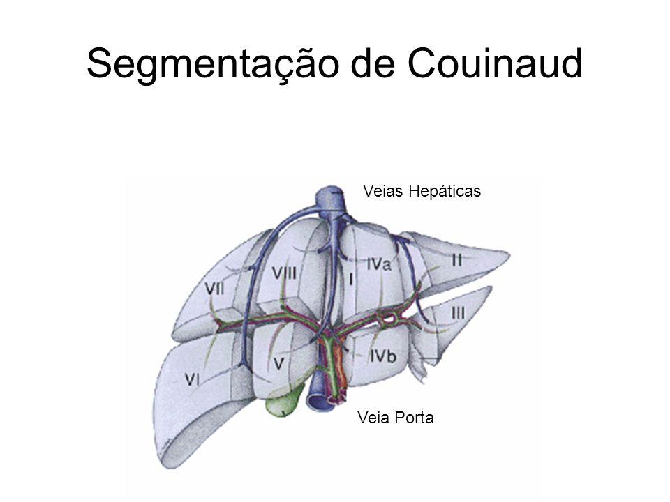 Segmentação de Couinaud
