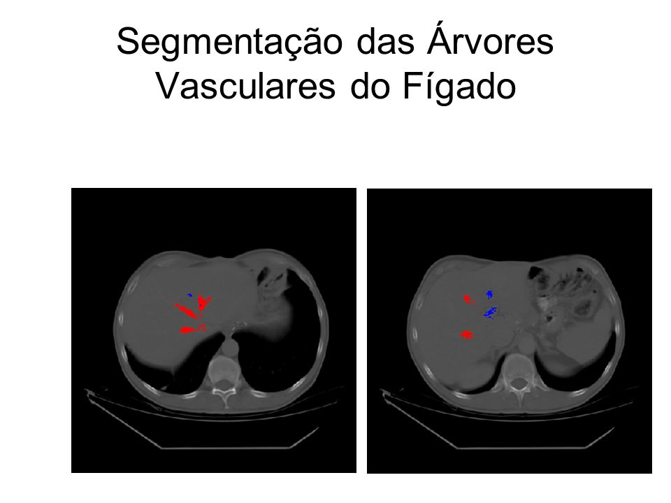 Segmentação das Árvores Vasculares do Fígado