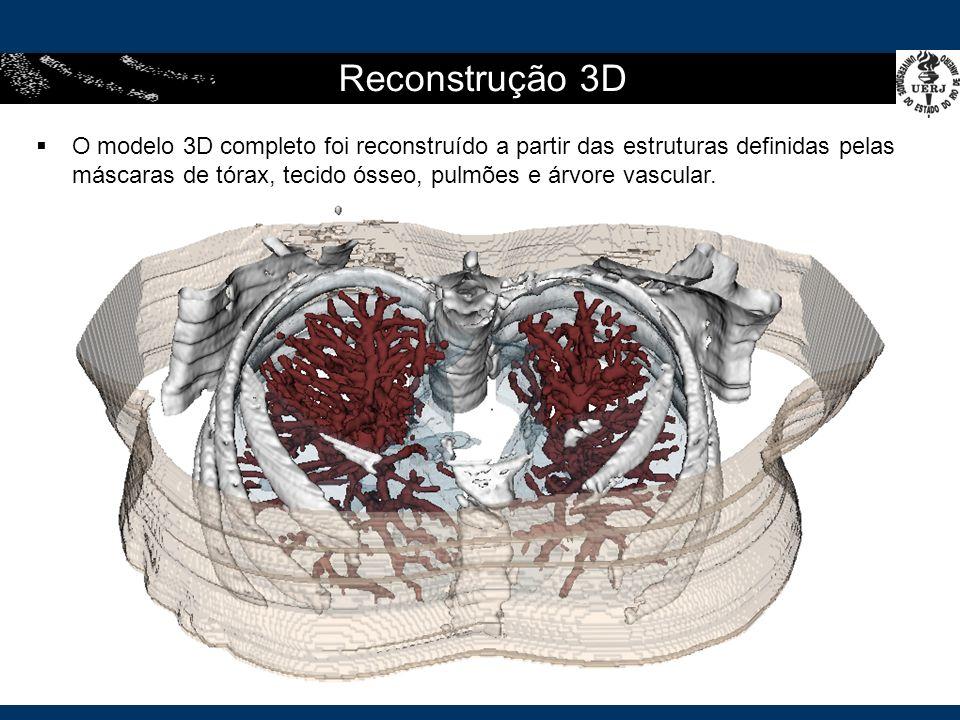 Reconstrução 3D