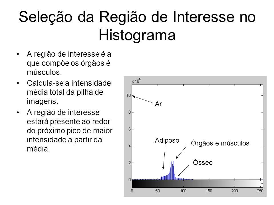 Seleção da Região de Interesse no Histograma
