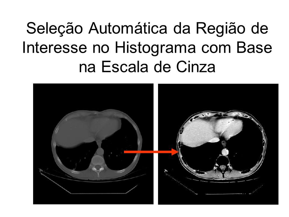 Seleção Automática da Região de Interesse no Histograma com Base na Escala de Cinza