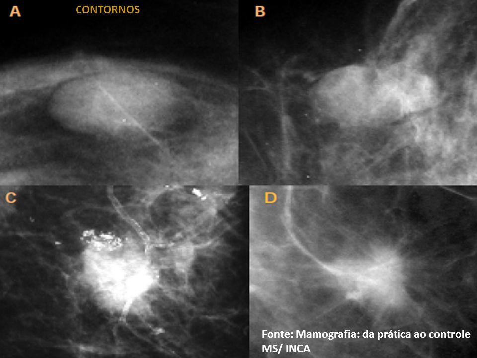CONTORNOS Fonte: Mamografia: da prática ao controle MS/ INCA