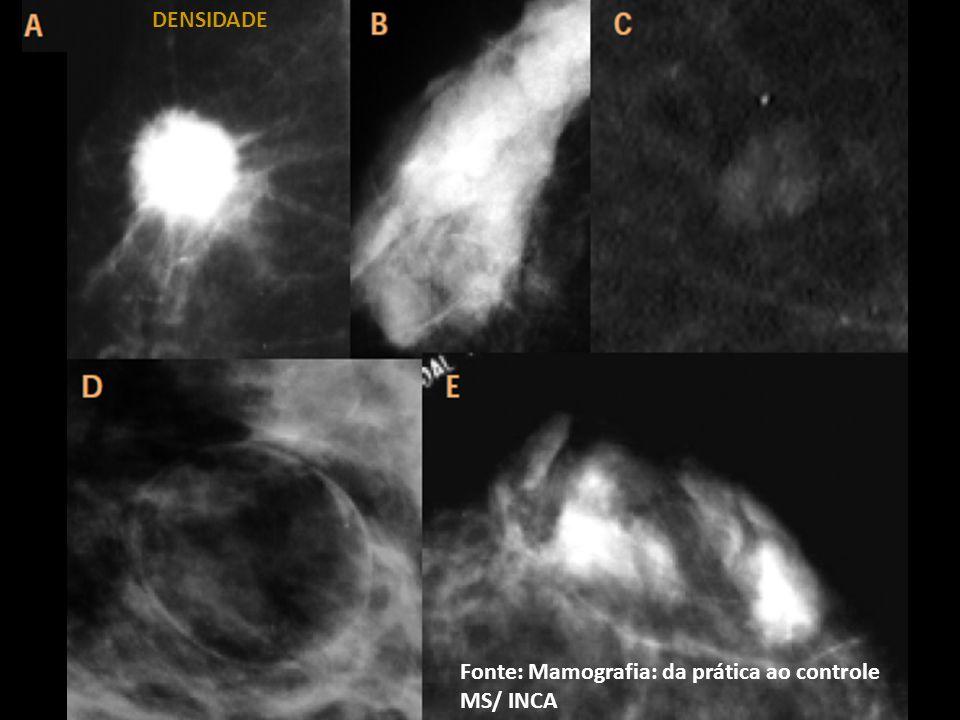 Fonte: Mamografia: da prática ao controle