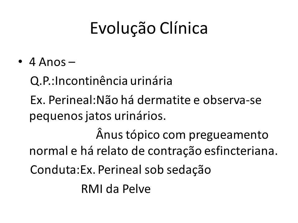 Evolução Clínica 4 Anos – Q.P.:Incontinência urinária